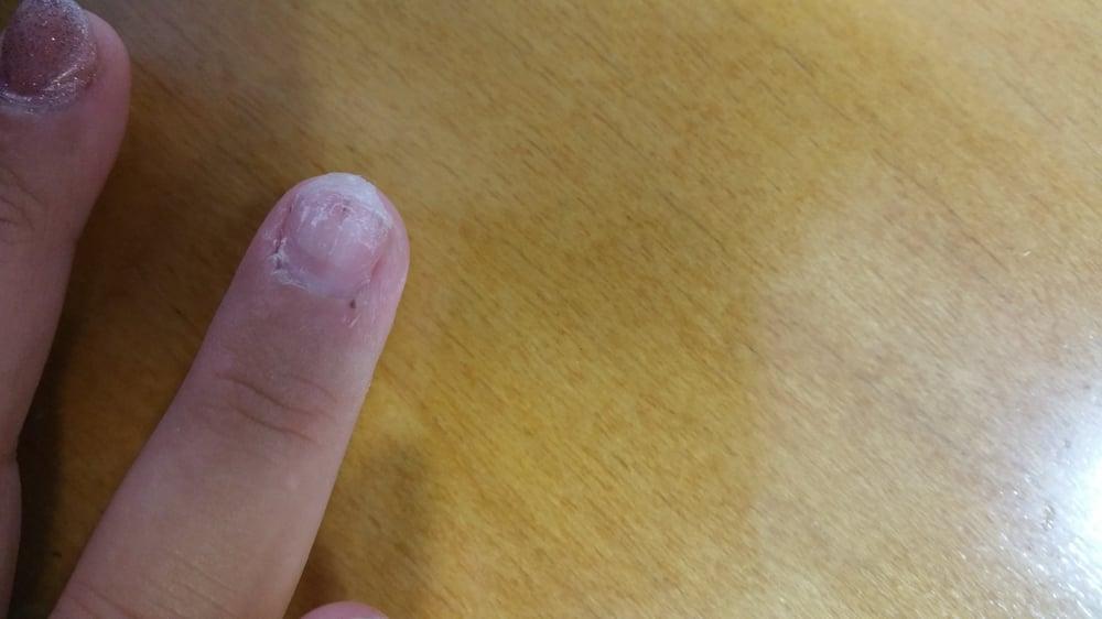 My nail after the sns nail and the fake nail came off. My nail was ...