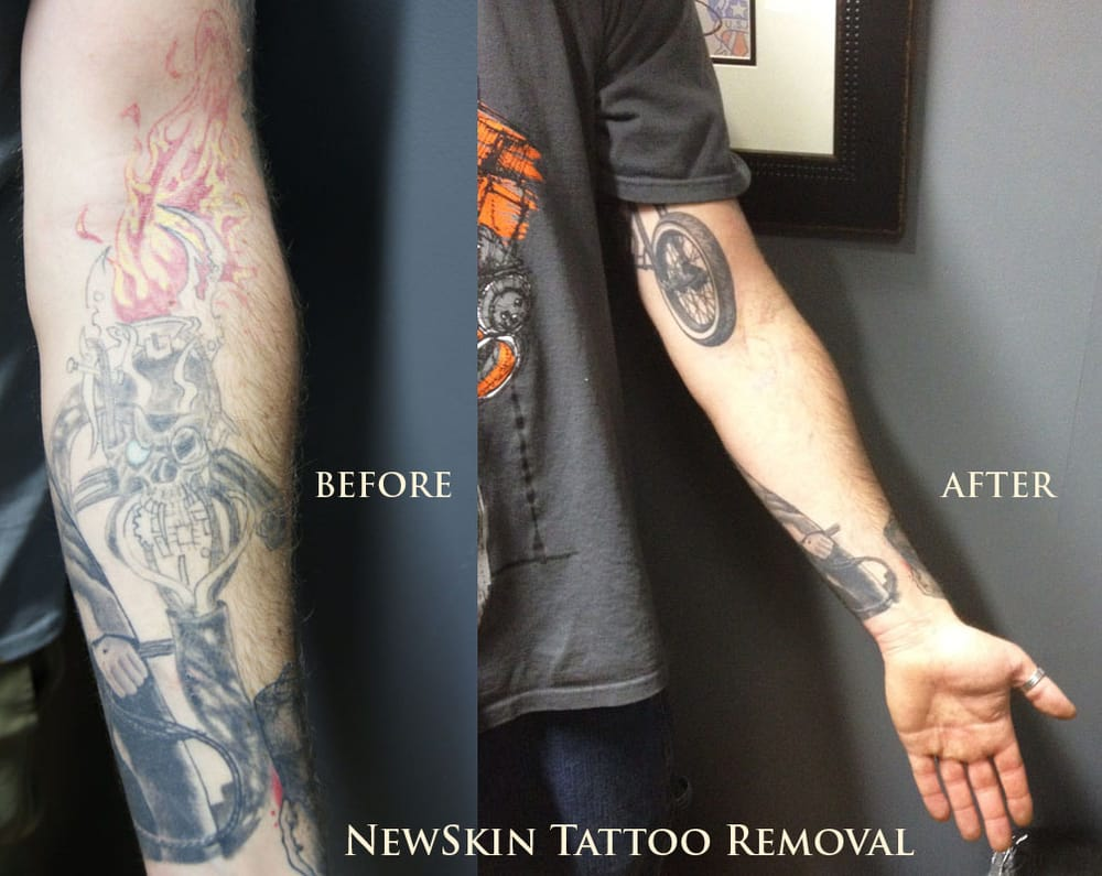 NewSkin Tattoo Removal - Tattoo - 544 Milford Rd, Swansea, MA ...