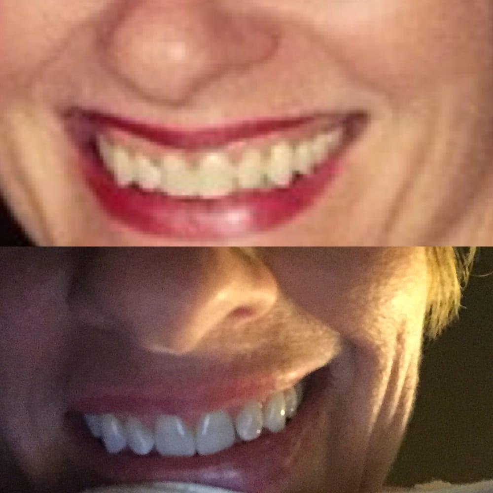 Perfect Ten Smile: 3405 Midway Rd, Plano, TX