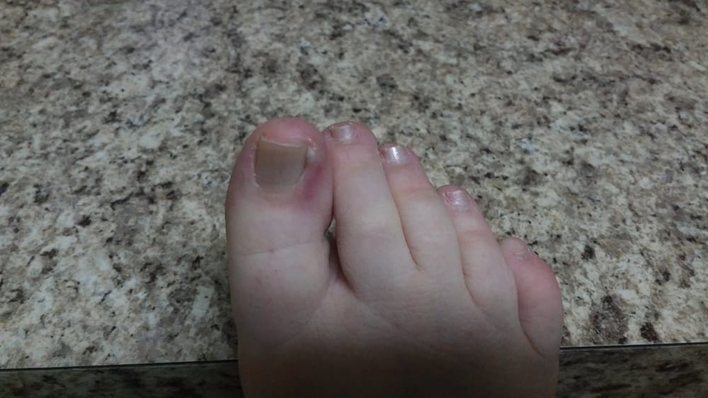 This is 3 weeks after my pedicure from Escape Nail Salon and skin ...