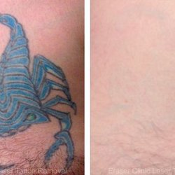 Eraser Clinic Laser Tattoo Removal - 69 Photos & 52 Reviews - Tattoo ...