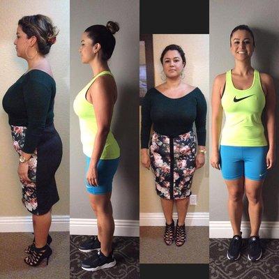 Weight loss surgeons plano tx