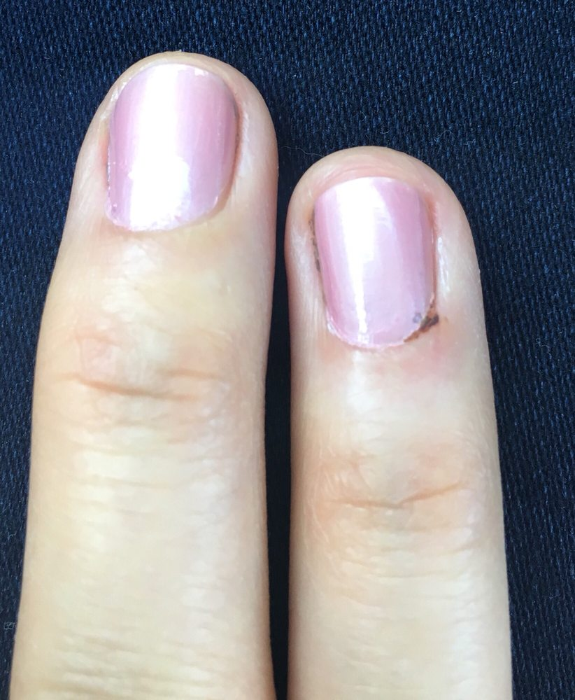 Black color is where my finger bled... also under the nail polish - Yelp