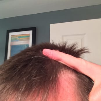 Mvp haircut meaning