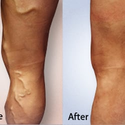 varicose vein treatment reviews