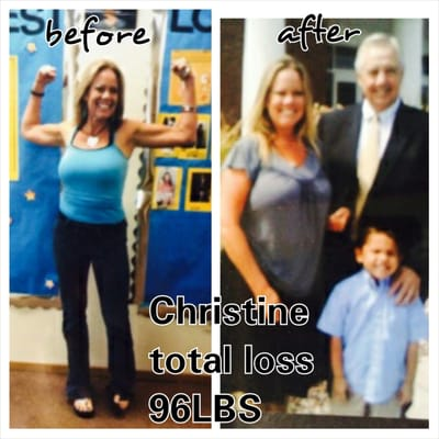 Weight loss dr in grenada ms