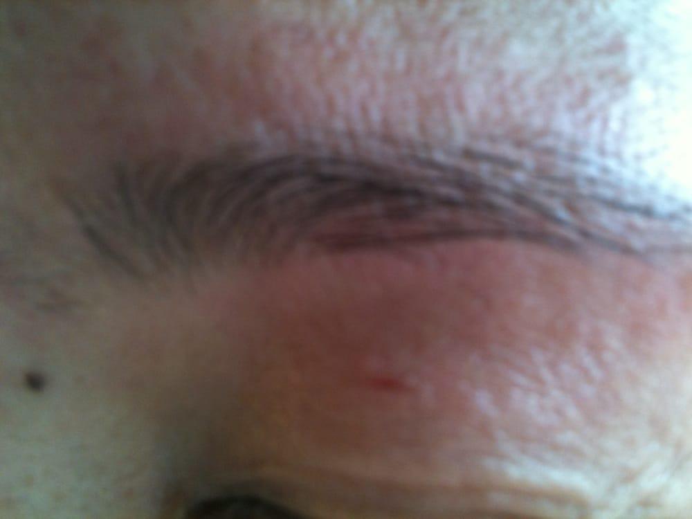 Torn Eyelid Flesh From Harsh Threading Yelp