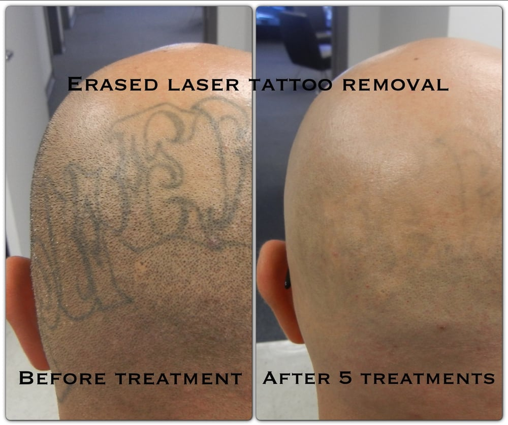 After the 5th treatment erased tattoo removal las vegas for Tattoo removal clinic