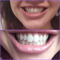 Photo Of San Go S Teeth Whitening Center Ca United States