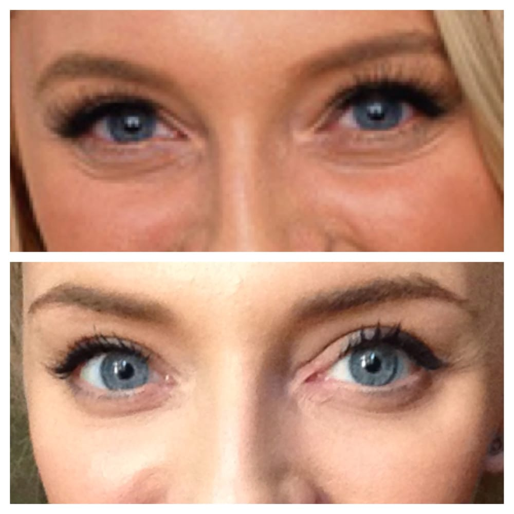Botox with Liza! No more lines under the eyes! - Yelp