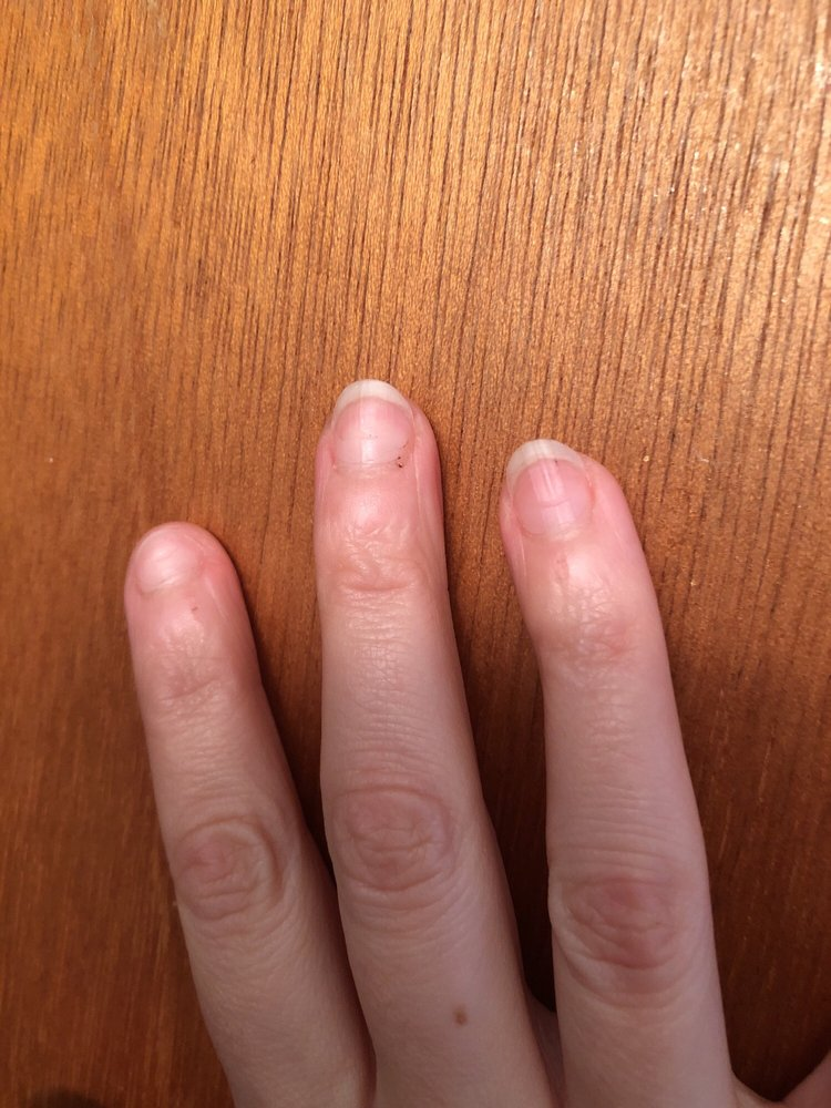 This is the result of my manicure--semilunar dents in each of my ...