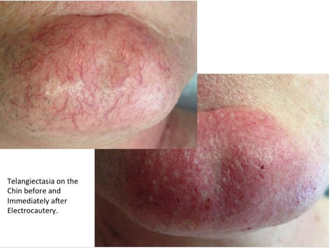 electrocautery to gently remove telangiectasia  photos show
