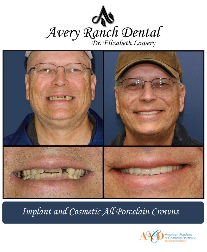 Avery Ranch Dental: 15004 Avery Ranch Blvd, Austin, TX