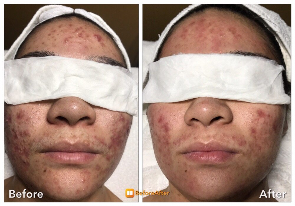 Blue Light Acne Treatment After 2 Treatments Sessions