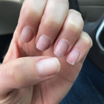 how to stop biting my nails and cuticles