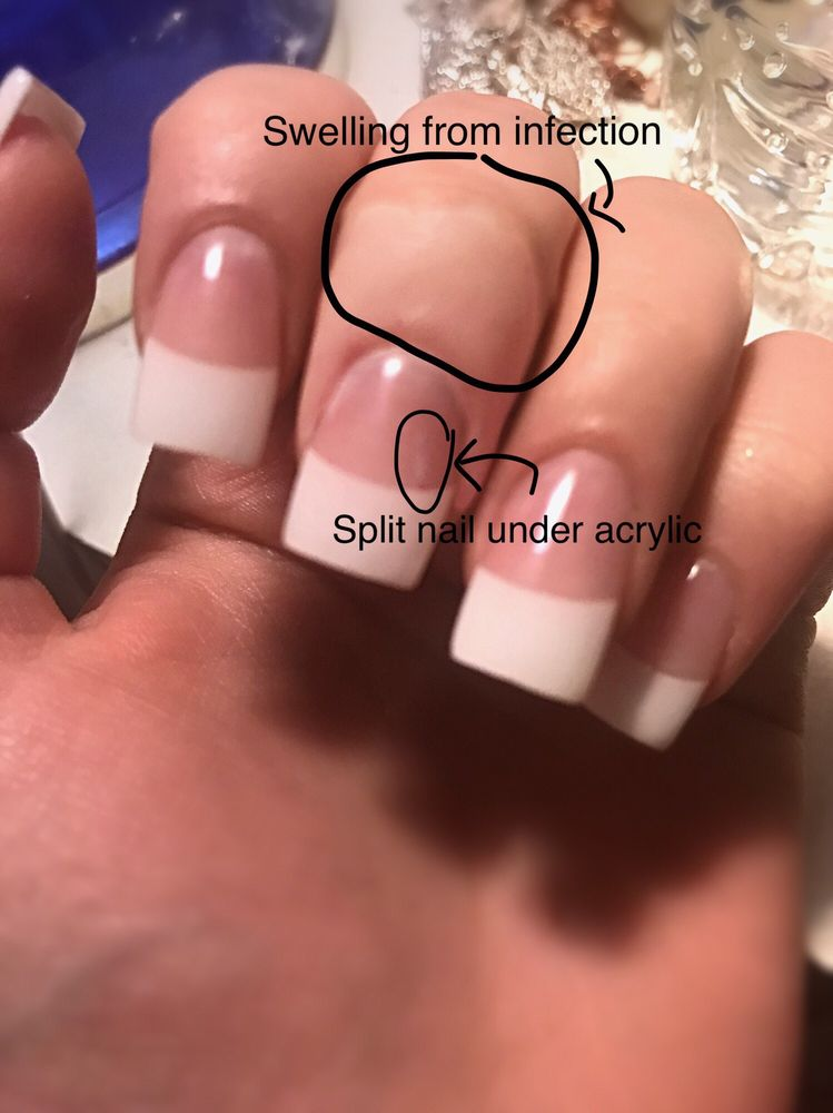 This shows my broken nail under the acrylic and how swollen my ...