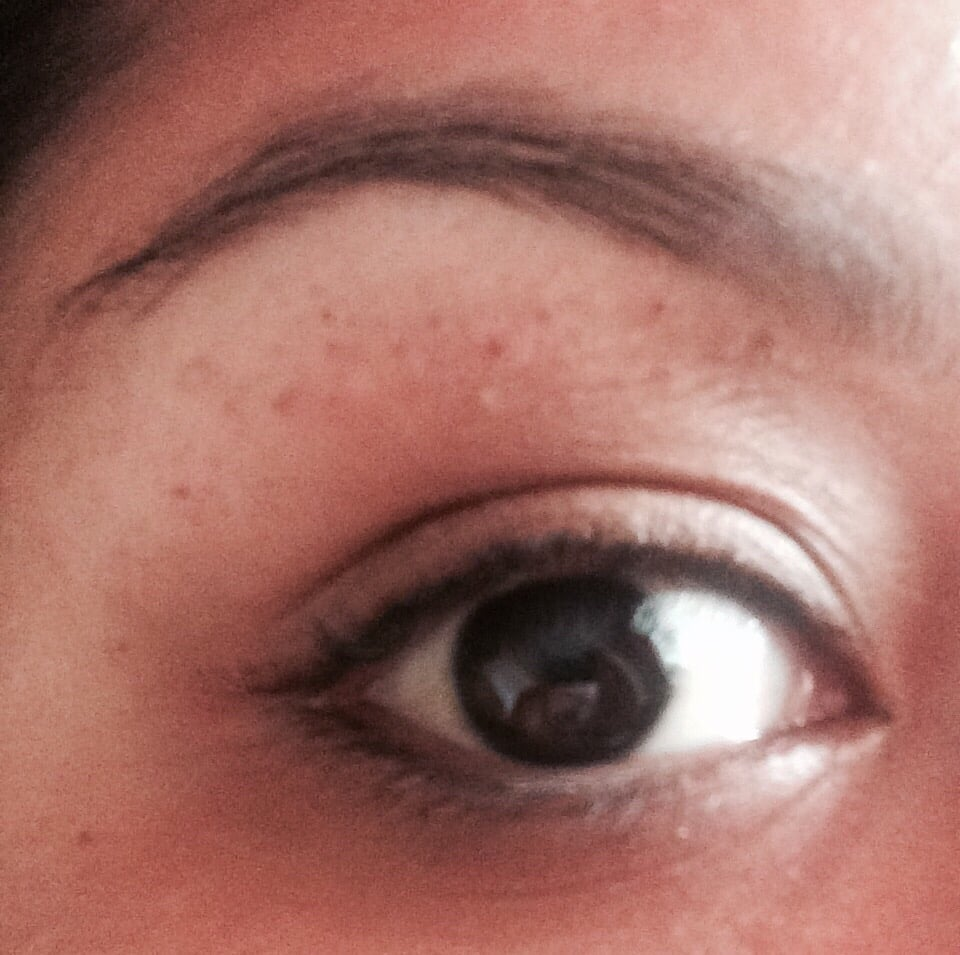 Went To Get My Eyebrows Done 2 Days Ago Was Left With Lots Of Mini
