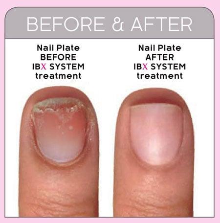 We Repair Weak/Damaged Nails - Yelp