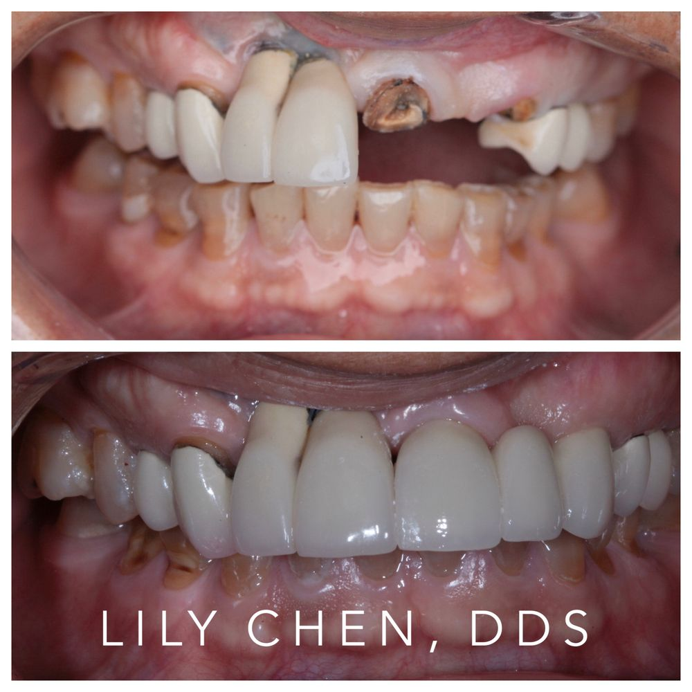 Lily Chen, DDS, PA: 4747 Bellaire Blvd, Bellaire, TX