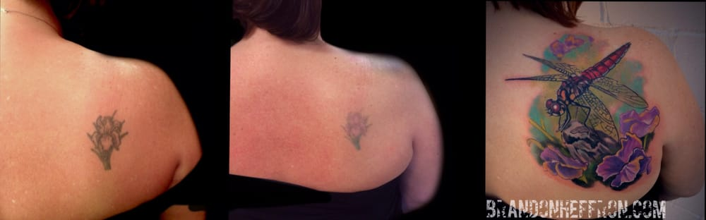 Photo Of Beloved Laser Tattoo Removal Saint Paul Mn United States Laser
