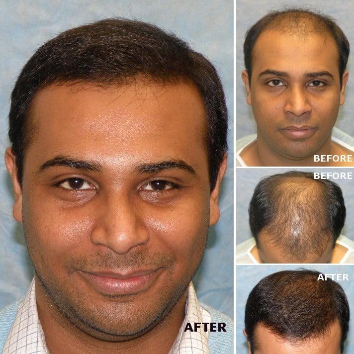 Bernstein Medical - Center for Hair Restoration - 21 Photos