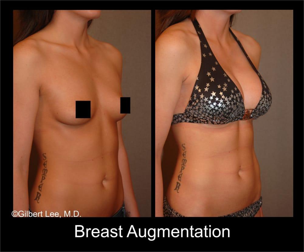 breast implants in bel air maryland