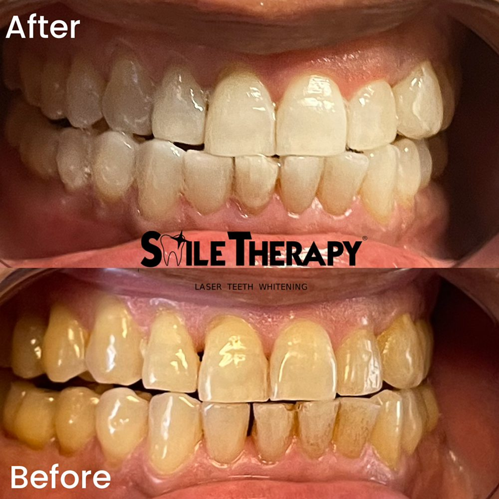 Smile Therapy: 6929 N Willow Ave, Fresno, CA