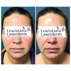 Louisiana Laserderm - 23 Photos - Laser Hair Removal - 13686 Coursey ...