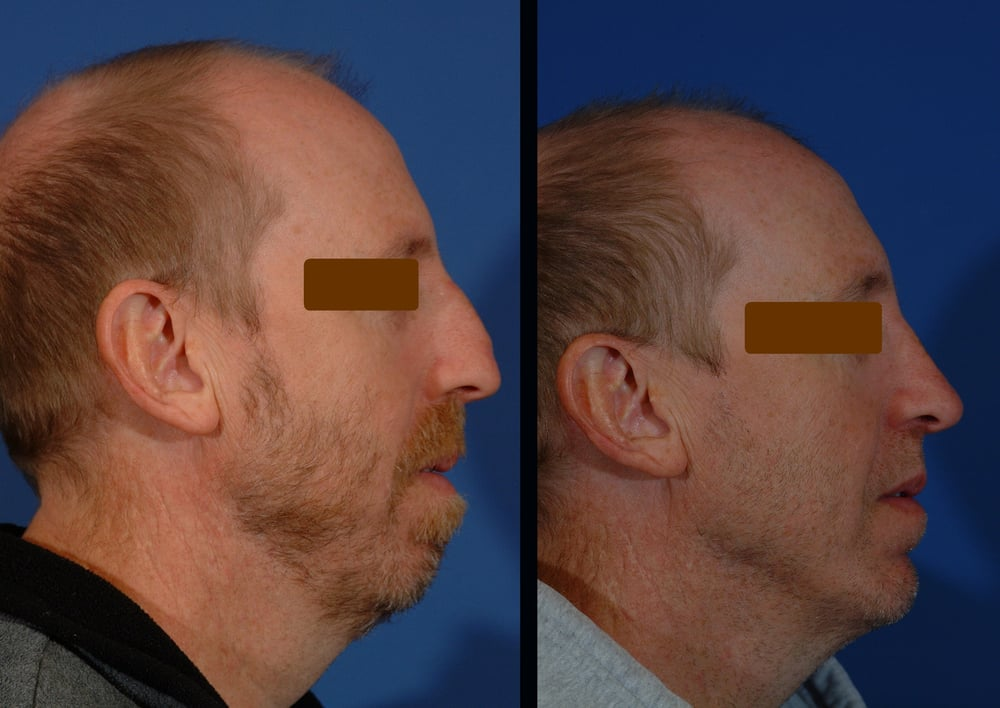 Art of Facial Surgery