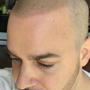 Yelp Reviews for Zang SMP - 46 Photos & 19 Reviews - (New) Hair Loss