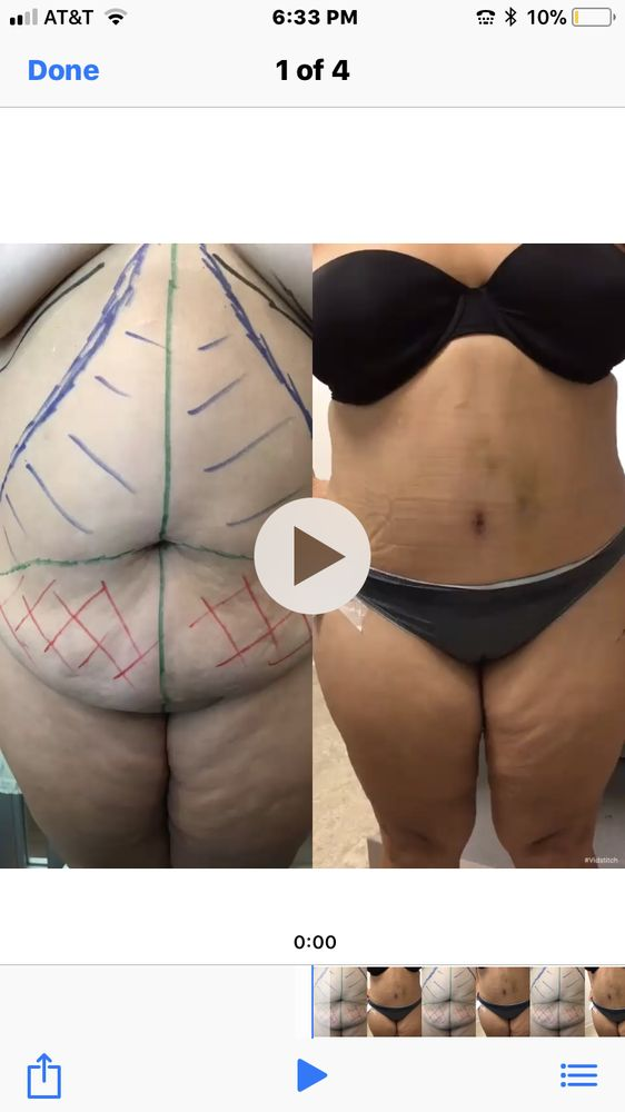 Here is the result of my wife's tummy tuck from 9/27/17 to 10/20/17
