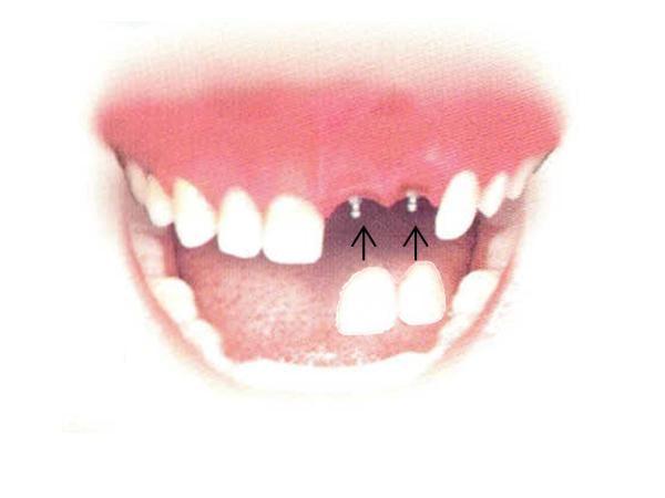 Armen Tumanyan, DMD -  Troy Family Dental: 21 Prospect Cir, Troy, MO