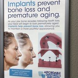 Photo Of Affordable Dentures Implants Las Vegas Nv United States