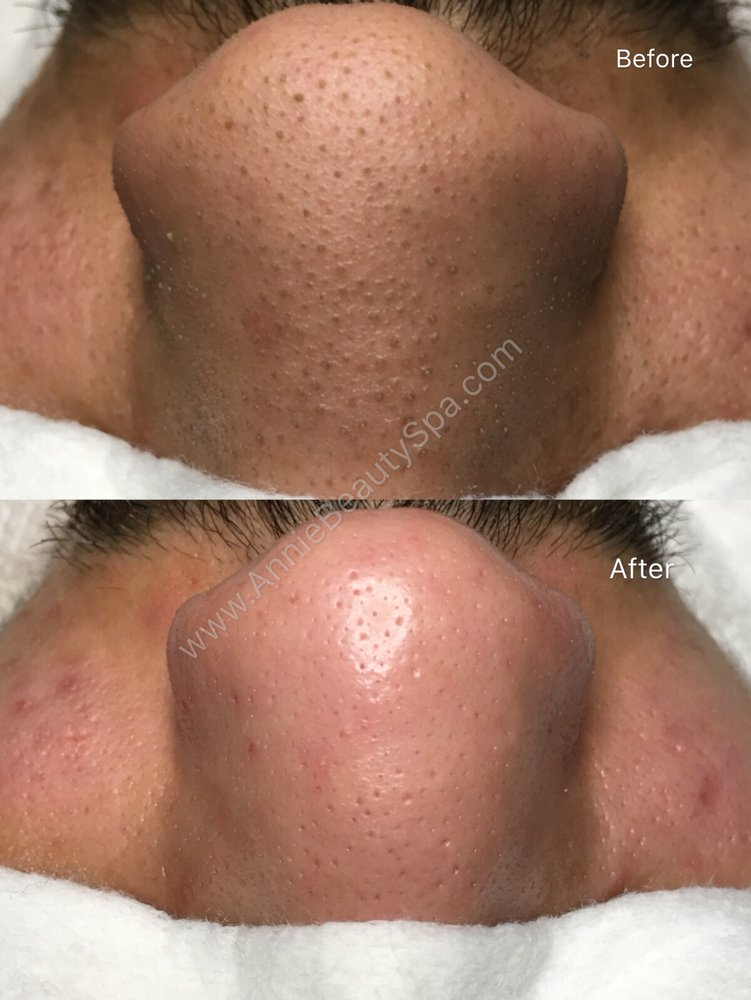 Blackheads Removal Before & After 1 treatment  (80 minutes Acne