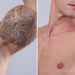 Ink Revision - CLOSED - Tattoo Removal - 1050 Connecticut Ave NW ...