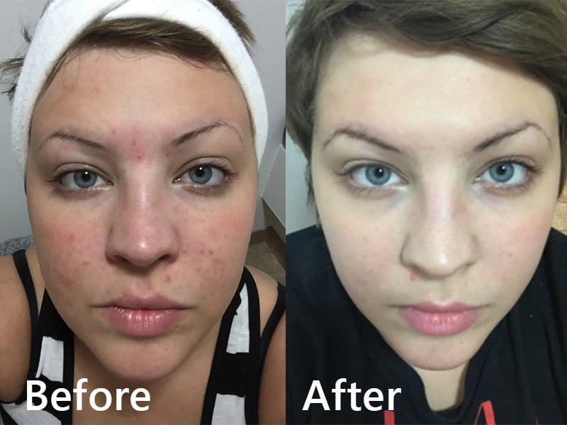 Before and after one Corrective Facial Peel Treatment