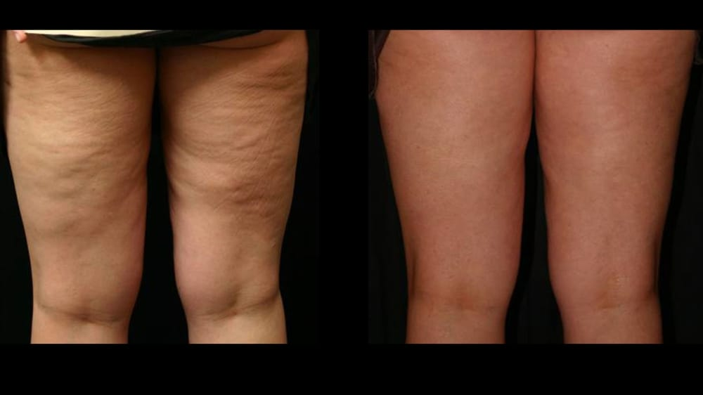 Awt Acoustic Wave Therapy Procedure For Cellulite Yelp