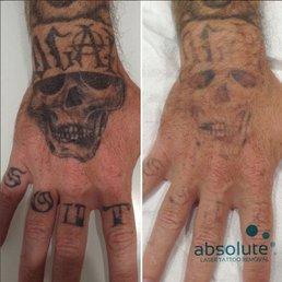 Tattoo Removal San Diego Yelp Nemetas Aufgegabelt Info