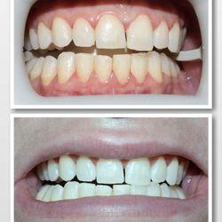 Laser Teeth Whitening Cost Teethwalls