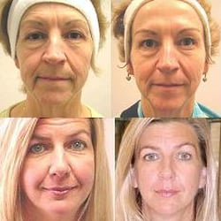 Microcurrent facial and body sculpting