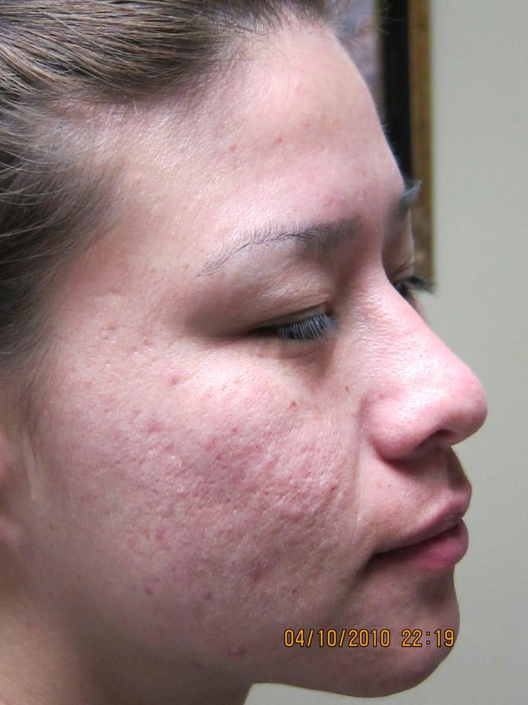 Deep erbium laser peel for acne scar yelp ccuart Gallery