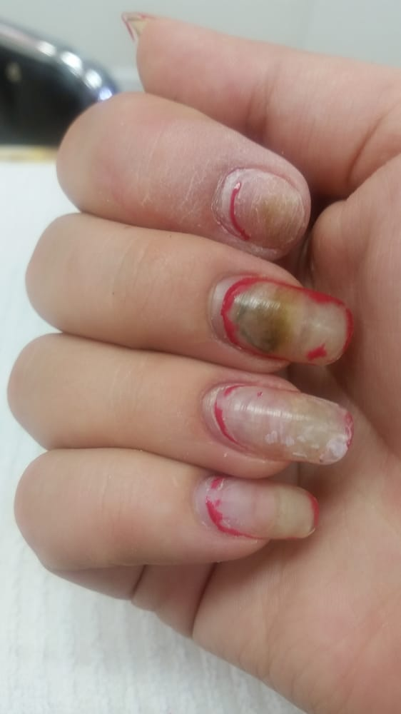 After two other nails fell off, this one had to be removed and ...