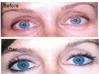 Eyeliner Before and After - Yelp