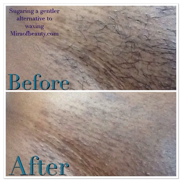 Man bikini wax pictures before and after nude