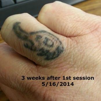 New Life Laser - 23 Photos & 13 Reviews - Tattoo Removal - 411 E ...