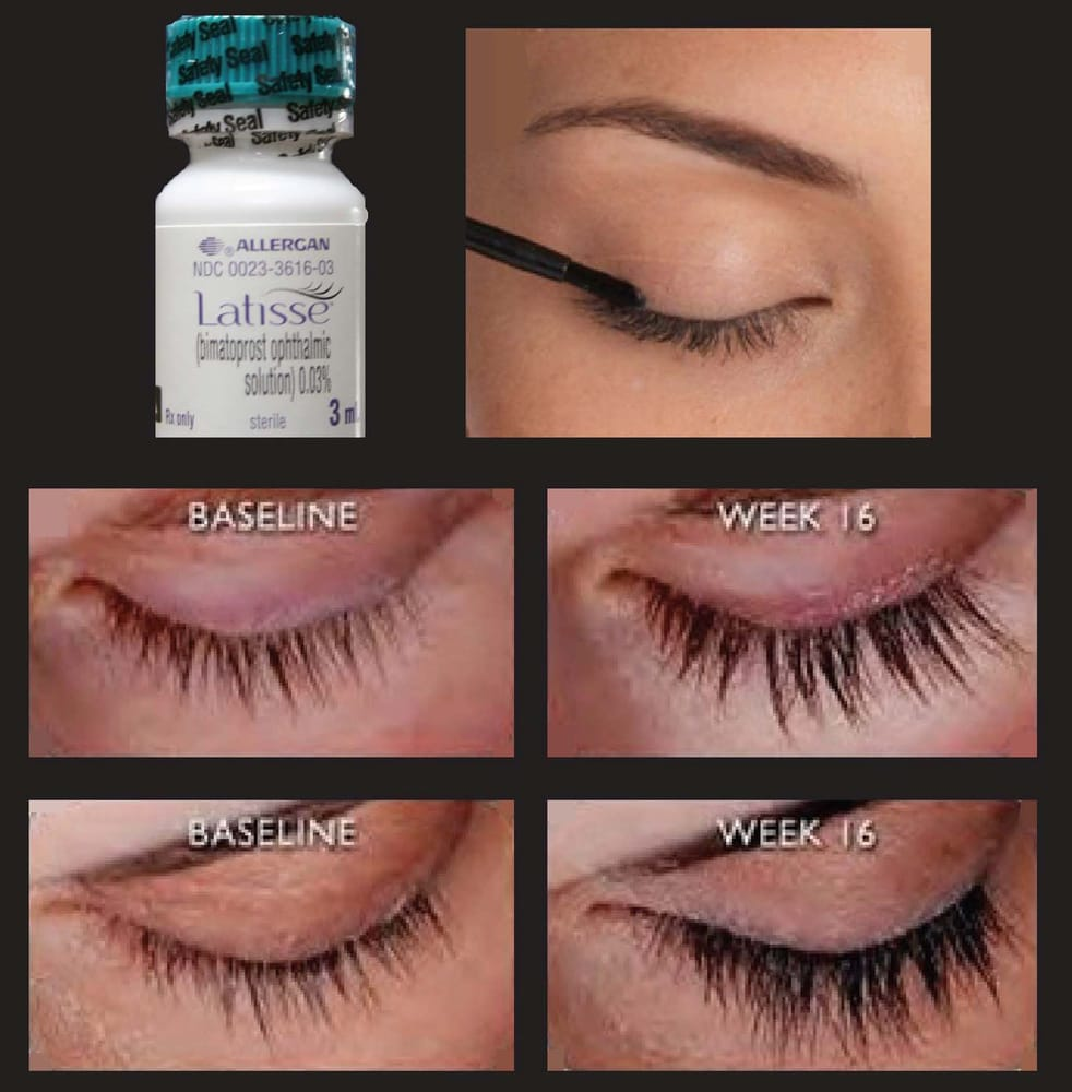 Latisse For Longer Lashes Yelp