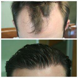 Biltmore Surgical Hair Restoration - Hair Loss Centers