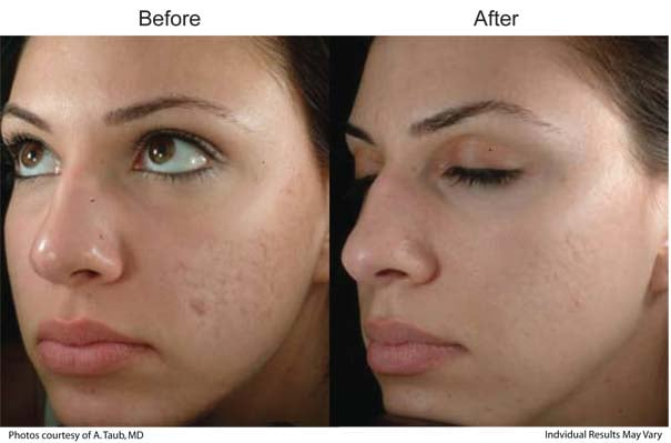 Removal Of Acne Scars And Pitting With Sublative Elos Plus