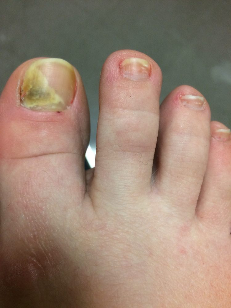 Fungal infection from pedicure. Goodbye, toenail! - Yelp