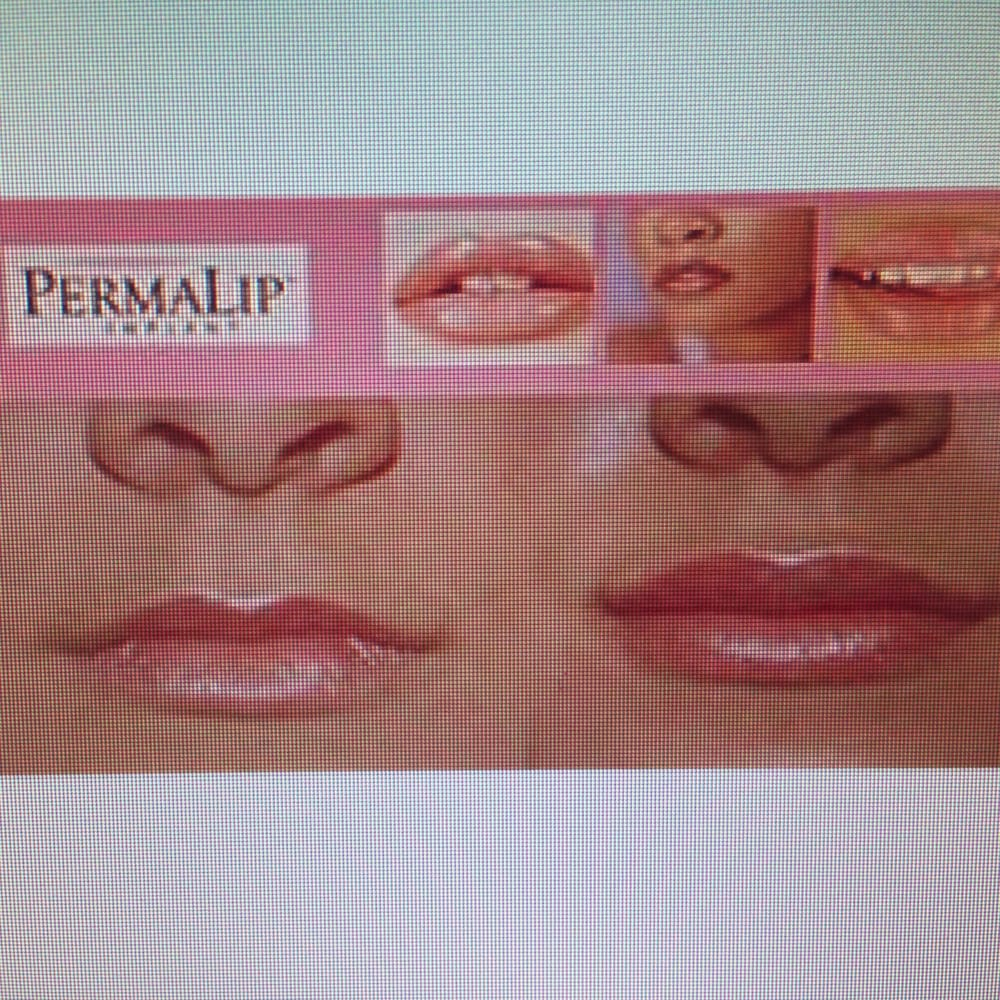Perma Lip is available in a variety of sizes to achieve customized